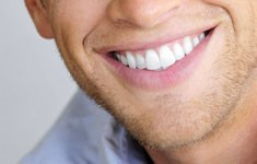 Faccette dentali ed estetica dentale